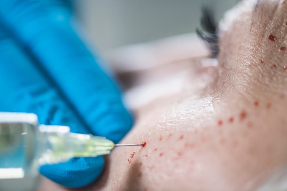 PRP Facial Side Effects